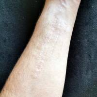 couvrir cicatrice